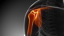 arthroplasty (joint replacement)