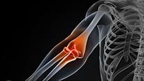 Shoulder & Elbow Arthroscopic (keyhole)
